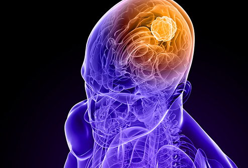 493ss_getty_rf_brain_cancer_illustration.jpg