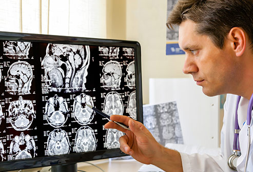 493ss_getty_rf_doctor_examining_mri_scan_of_brain