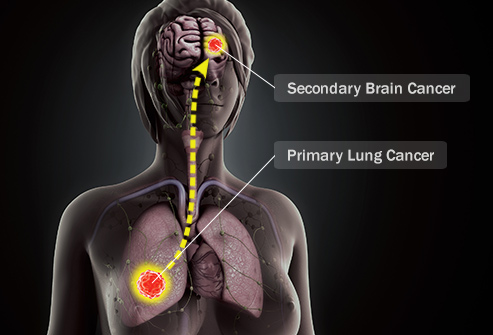 493ss_thinkstock_rf_lung_cancer_to_brain_migration